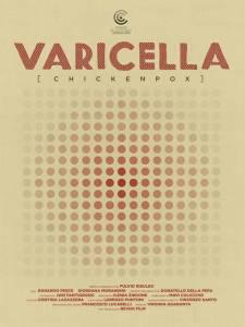 varicella_poster